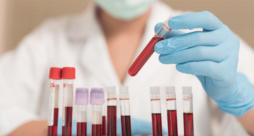 GDF oferece testes rápidos para infecções sexuais gratuitos